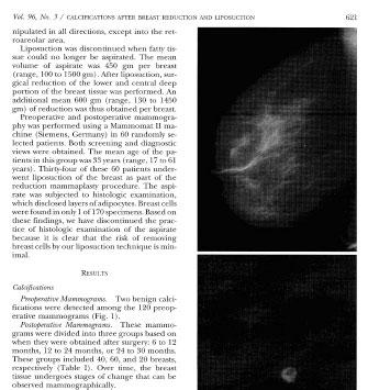 Présence de calcifications après une liposuccion associée à une mammaplastie - Dr Abboud